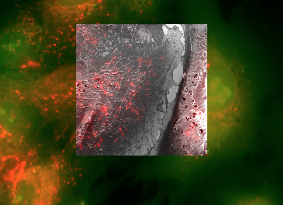 Imaging whole cells